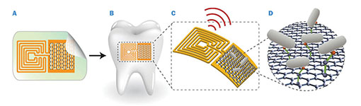 A: Graphene is printed onto bioresorbable silk, and contacts are formed containing a wireless coil. B: Biotransfer of the sensor onto the surface of a tooth. C: Magnified schematic of the sensing element, illustrating wireless readout. D: Binding of pathogenic bacteria by peptides on the graphene. Illustration by Manu Mannoor/Nature Communications